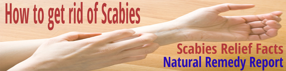 how-to-get-rid-of-scabies